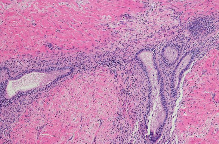 L'endométriose décrit une condition dans laquelle des morceaux de tissu de la muqueuse utérine sont déposés à l'extérieur de l'utérus, dans le bassin ou l'abdomen.
