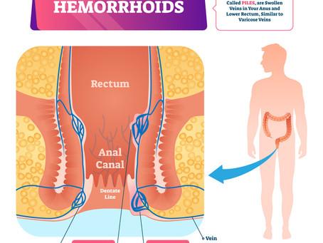 Hémorroïdes et maladie hémorroïdaire