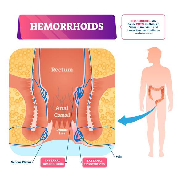 Illustration vectorielle d'hémorroïdes. Schéma de pieux vasculaires anatomiques étiquetés. Diagramme avec veines gonflées dans l'anus et maladie du rectum inférieur.