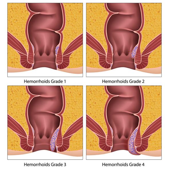 Schéma des 4 grades de la maladie hémorroïdaire en 4 visuels