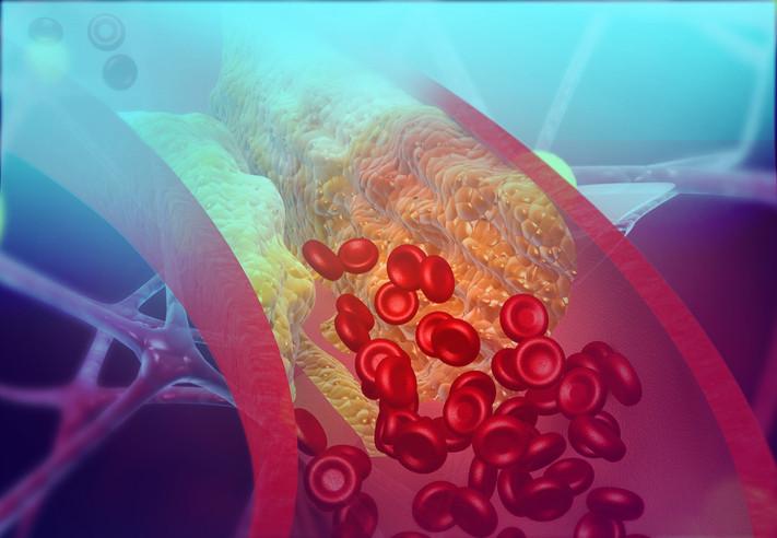 Illustration d'une artère bloquée par le mauvais cholestérol.