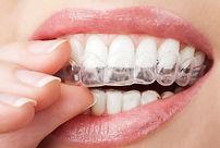 Appareils Orthodontiques 2.jpg