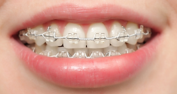 Appareils Orthodontiques.png