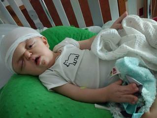Luke's Fronto-Orbital Advancement (FOA) Surgery