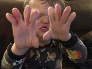 10 Separate Fingers!