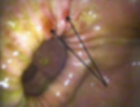 Gastrointestinal Endoscopy