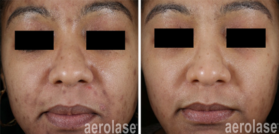 NeoClear Acne - 5 Months After 3 Treatme