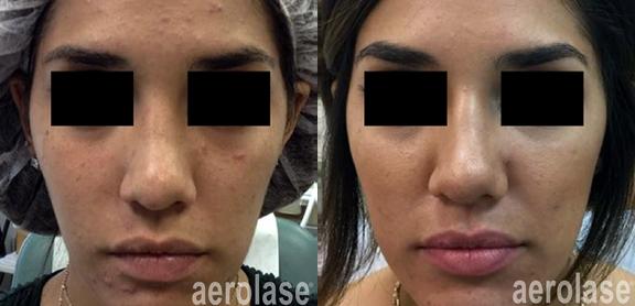 aerolase-mark-nestor-acne-2-months-after