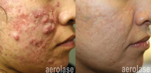 aerolase-michael-gold-acne-5-treatments.