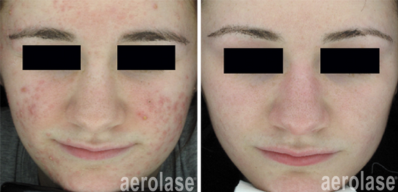 NeoClear Acne - 3 Months After 5 Treatme