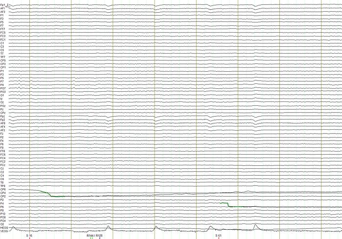 Schermafbeelding 2019-04-10 om 11.41.58.