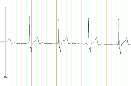 ECG-with-R-markers