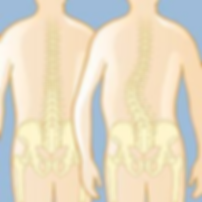 scoliosis 2.png
