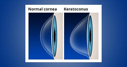 keratoconus-with-labels-1200x630.jpg