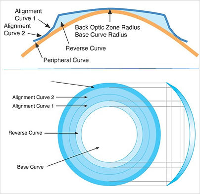 Orthokeratology-Lens.jpg