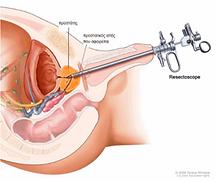 kaloithis-iperplasia-prostati-4.png
