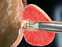 kaloithis-iperplasia-prostati-5.png