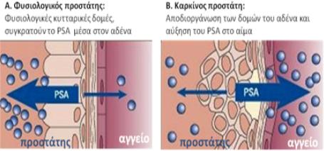 karkinos-prostati-3.png