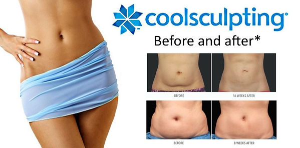 Before+and+After+CoolSculpting+Staten+Is