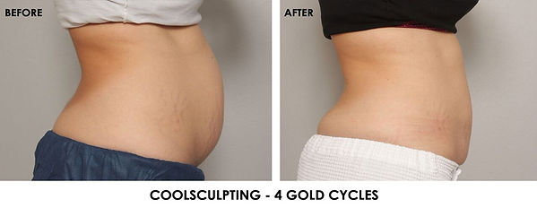 coolsculpting-before-after.jpg