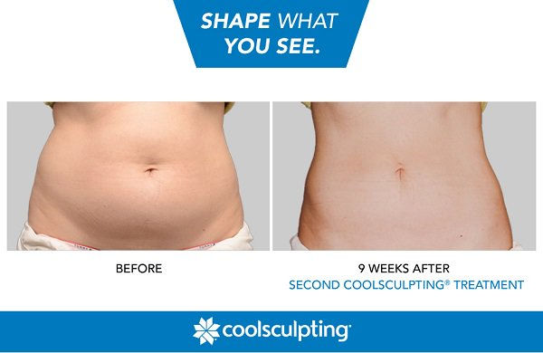 Before-After-CoolSculpting-1.jpg