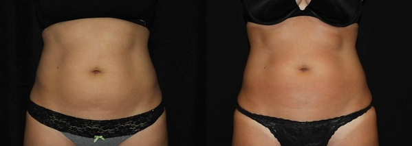 coolsculpting_abdomen_1.png