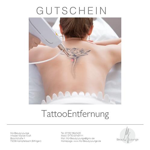 Anwendungsgutschein TattooEntfernung