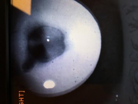 Гиперферритинемический катарактальный синдром