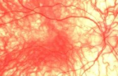 Глазное дно при альбинизме