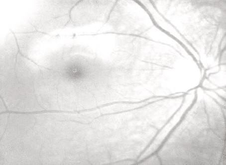 Гипоплазия зрительного нерва