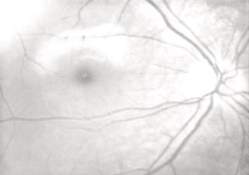 Гипоплазия зрительного нерва, атрофия зрительного нерва