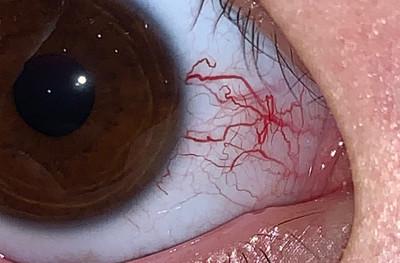 Глазные проявления синдрома Луи- Бар