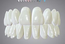 DWOS_FD_2_tooth_setup
