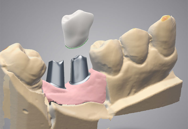 DWOS_IMP_abutment_dual_custom_abutment_overpressed_crown