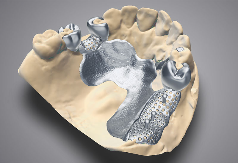 DWOS_PFW_upper_arch_framework_model_teeth_placement