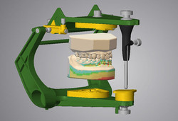 DWOS_BSP_dynamic_occlusion_with_virtual_articulator