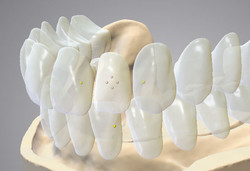 DWOS_FD_5_individual_tooth_placement
