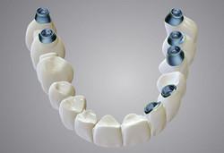 DWOS_IMP_bridge_upon_implants_2