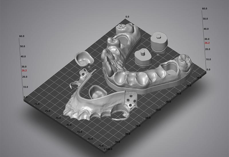 1_rapid_prototyping_ortho