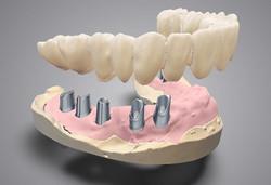 DWOS_IMP_bridge_upon_implants