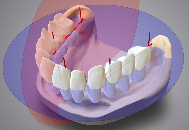 DWOS_FD_3_placement_occlusal_plane