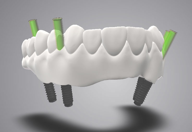 DWOS_IMP_full_waxup_screw_retained_bridge_zirconia
