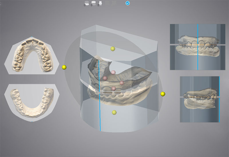 DWOS_OAR_3_orthodontic_positio_on_virtual_block