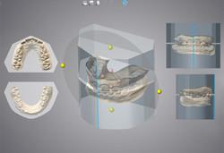 DWOS_OAR_3_orthodontic_positio_on_virtual_block