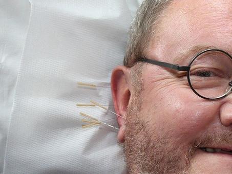 Relieve discomfort through Acupuncture