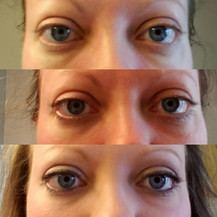 Before and after for the eye cream!