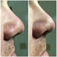 A man's result of the Blackhead