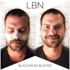 Blackhead Buster