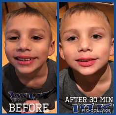 Results of Derma
