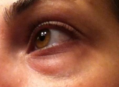 """Un remède naturel spécial """"cernes"""" sous les yeux"""